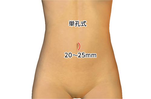 子宮筋腫 | 横浜市青葉区の婦人...